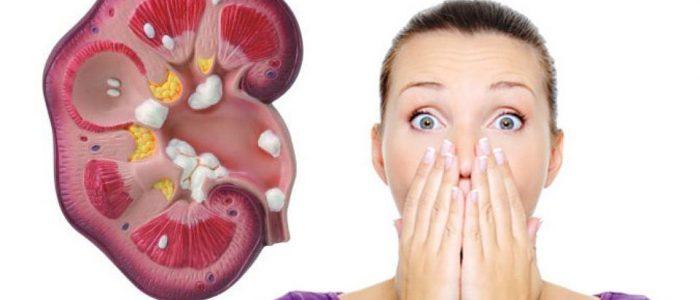 чем пиелонефрит отличается от мочекаменной болезни