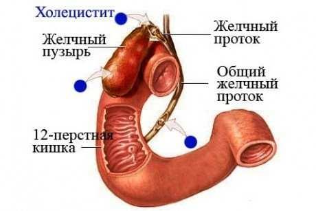 хронічний калькульозний холецистит історія хвороби з радіології