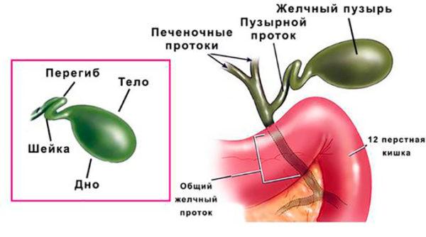 хронический холецистит перегиб в шейке желчного пузыря