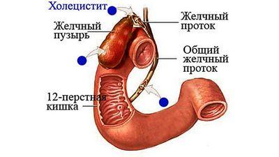 камни желчного пузыря с другим холециститом лечение