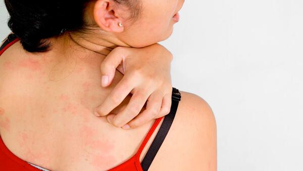 когда пройдет аллергия после лечения лямблиоза