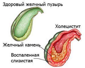 лечение хронического холецистита народными средствами самые эффективные