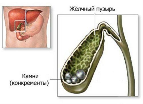 минеральная вода при калькулезном холецистите и примерное питание