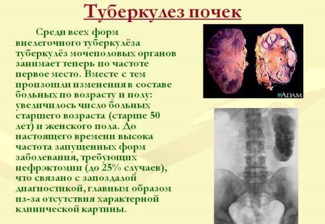мочекаменная болезнь исследование местного процесса