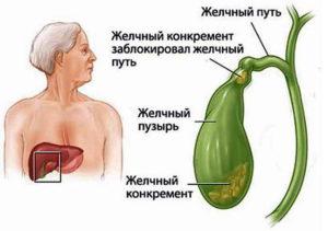 может ли болеть весь живот при холецистите