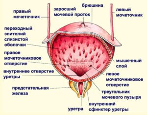 можно ли греть мочевой пузырь при цистите у мужчин