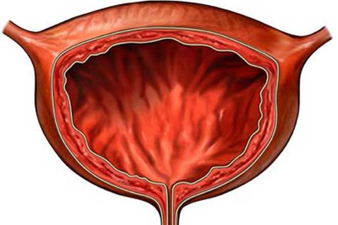 можно ли на узи мочевого пузыря увидеть цистит