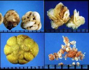 определение состава камней при мочекаменной болезни
