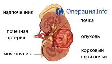 показания к нефрэктомии при мочекаменной болезни