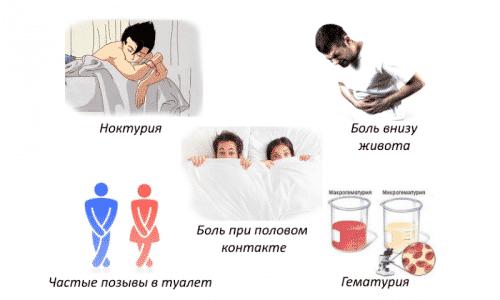 при цистите можно в бане париться в бане