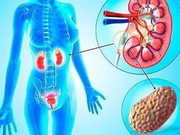 профилактика мочекаменной болезни у женщин