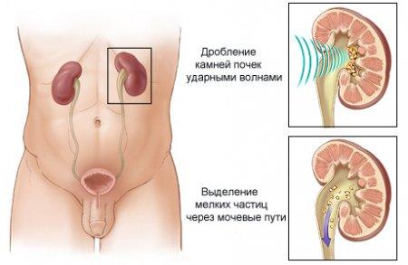 рези в животе при мочекаменной болезни
