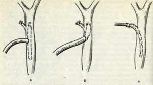 современные аспекты диагностики и лечения острого холецистита