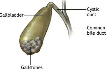 жкб хронический калькулезный холецистит что это такое