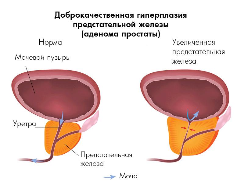 аденома простаты и мочекаменная болезнь