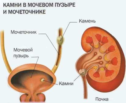 факторы способствующие развитию мочекаменной болезни