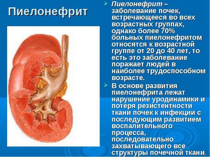 флемоксин солютаб как принимать при цистите у женщин