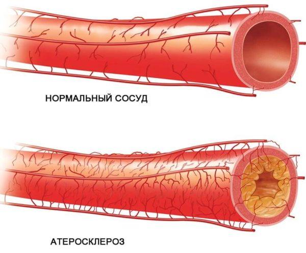 холецистит с джвп по гипотоническому типу