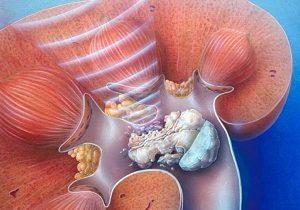 мочекаменная болезнь конкремент левой почки