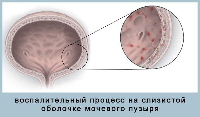 может ли при цистите болеть в левом боку