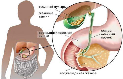 острый гангренозный калькулезный холецистит в инфильтрате