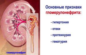 почему тошнит при мочекаменной болезни