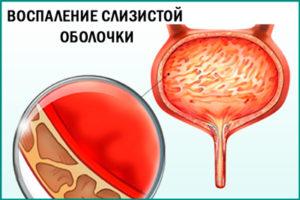 что делать нитроксолин не помогает при цистите