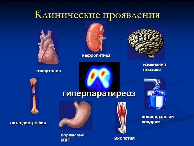 гиперпаратиреоз и мочекаменная болезнь