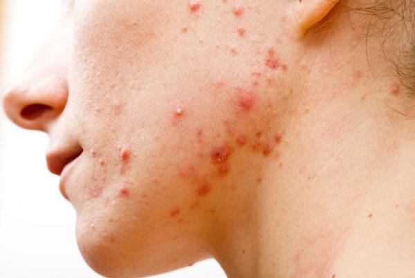холецистит и прыщи на лице и теле