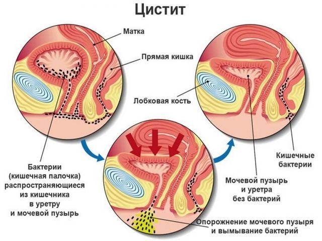 инфекции малого таза у женщин влияющие на цистит
