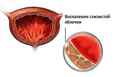 как облегчить цистит с кровью в моче