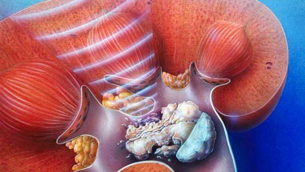 кефир при мочекаменной болезни