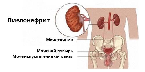 может ли болеть низ живота при цистите лечение