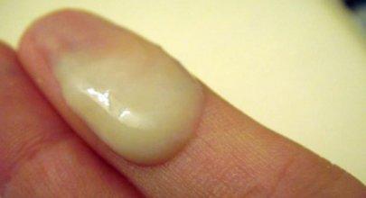 можно ли делать биопсию шейки матки при цистите