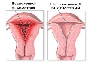 можно ли забеременеть при цистите и эндометрите