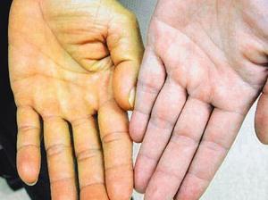 наиболее информативным методом диагностики острого холецистита является