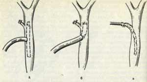 острый флегмонозный холецистит этиология и патогенез