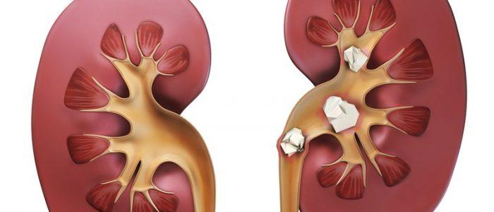 отеки при мочекаменной болезни