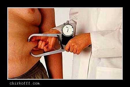 ожирение и мочекаменная болезнь