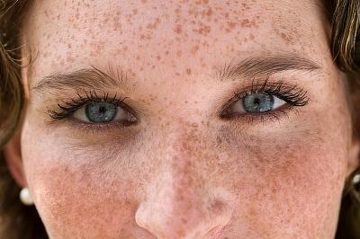 пигментные пятна на лице при холецистите