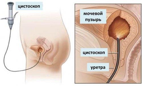 препараты для инстилляции мочевого пузыря при цистите