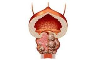 при мочекаменной болезни кровь в сперме