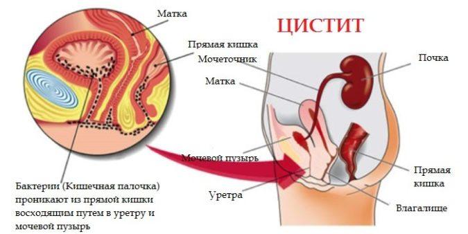у девочки цистит а лейкоциты в норме