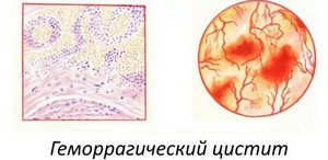 вирусный цистит симптомы лечение у женщин препараты