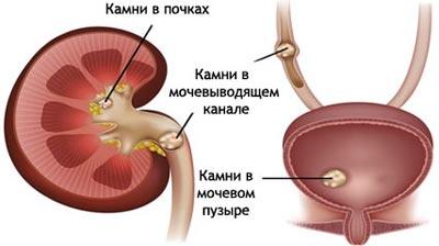 жалобы пациента при мочекаменной болезни