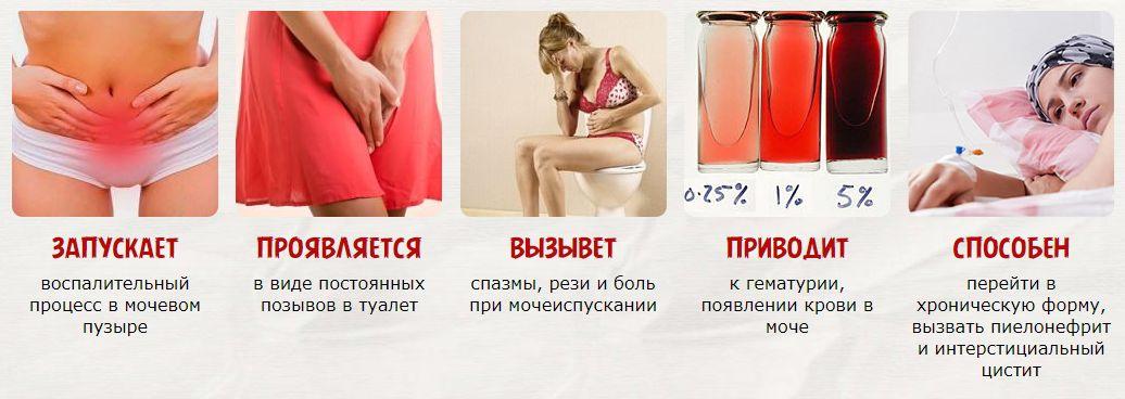 цистит при беременности 2 триместр чем лечить